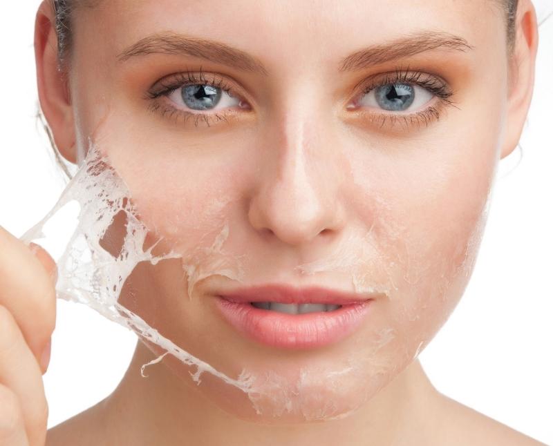 peeling-facial-web
