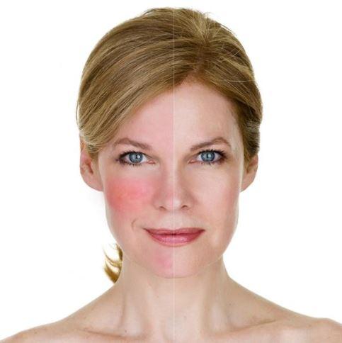 manchas capilares rojas en la cara