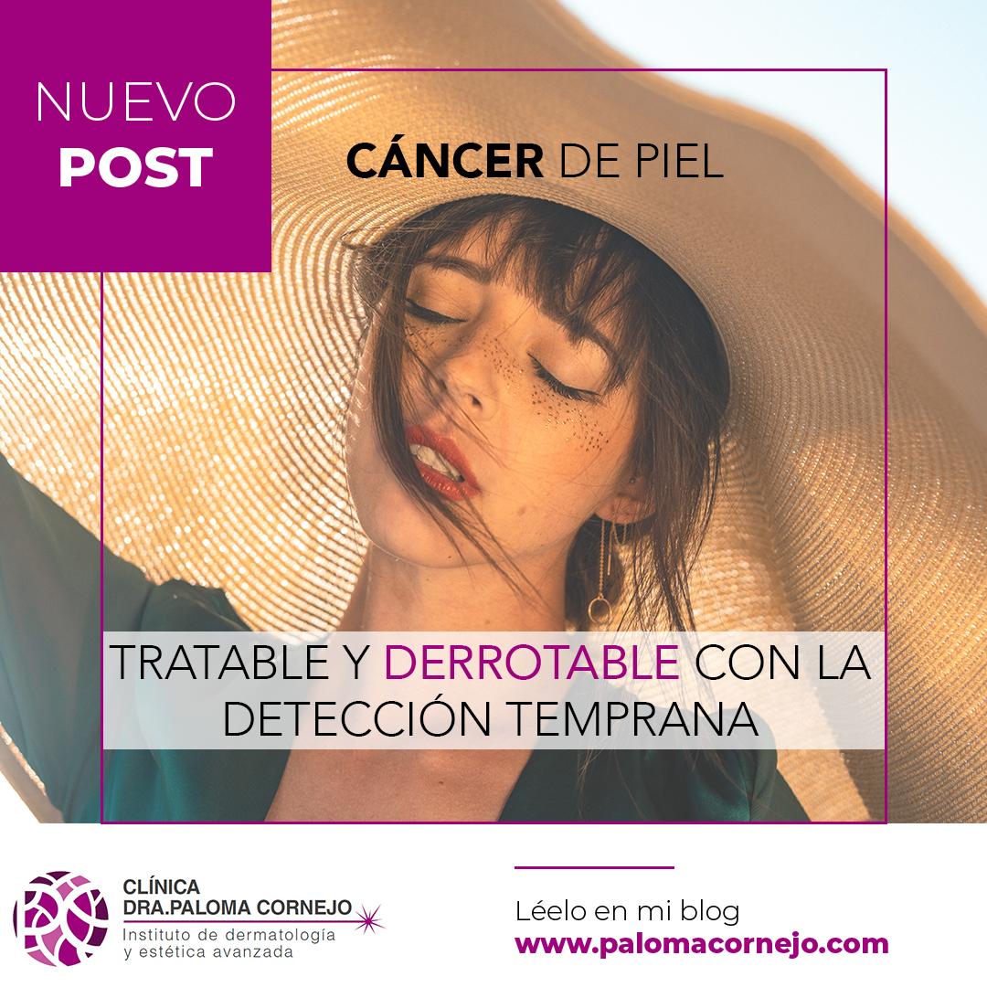 Cáncer de Piel: Tratable y Derrotable con la Detección Temprana
