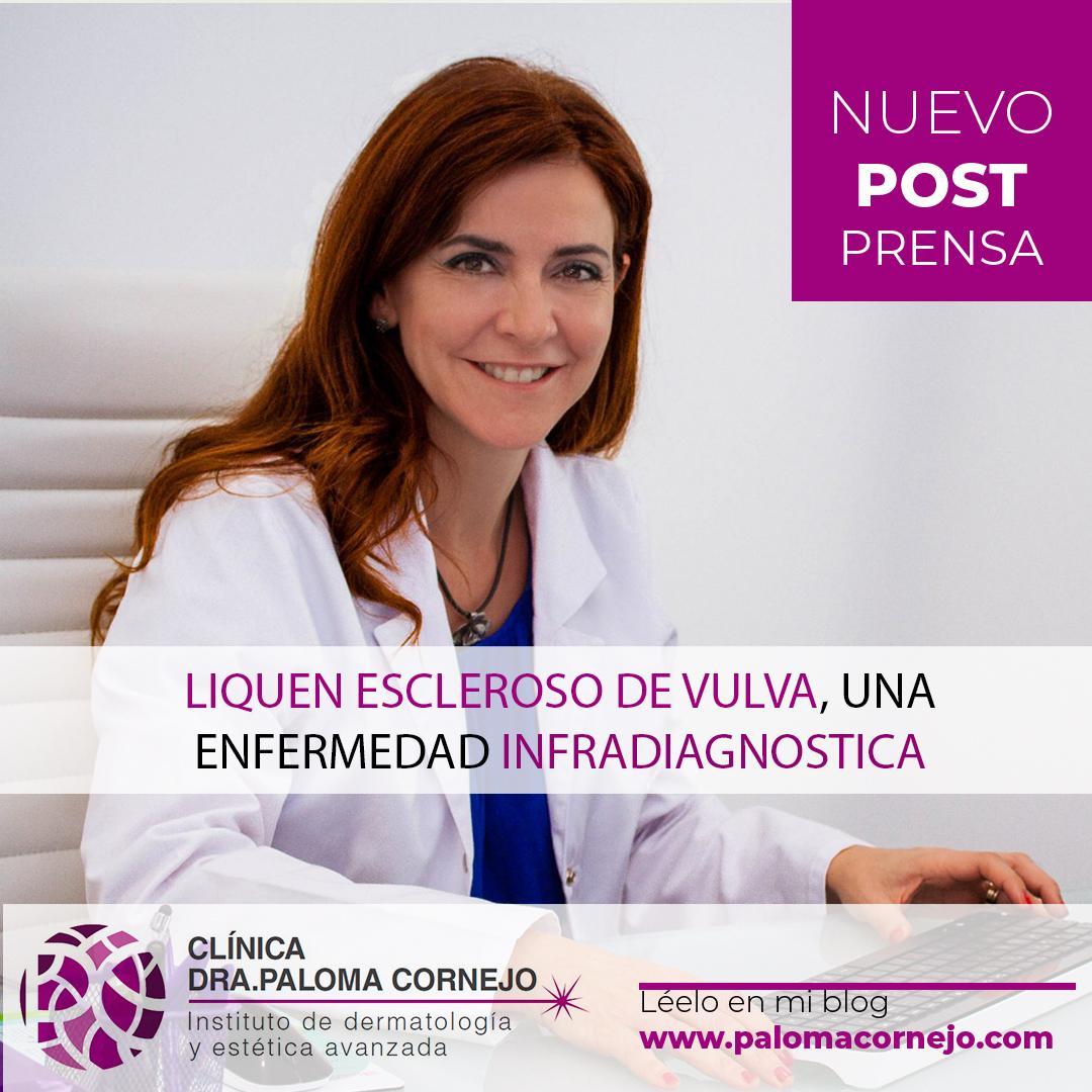 Liquen escleroso de vulva, una enfermedad infradiagnostica
